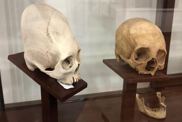 Crânes déformés -Musée archéologique - Sucre - Bolivie